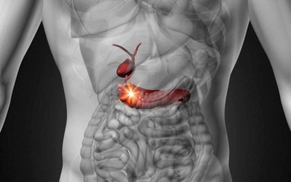 Καρκίνος παγκρέατος: Πώς μπορεί να βοηθήσει η διατροφή;
