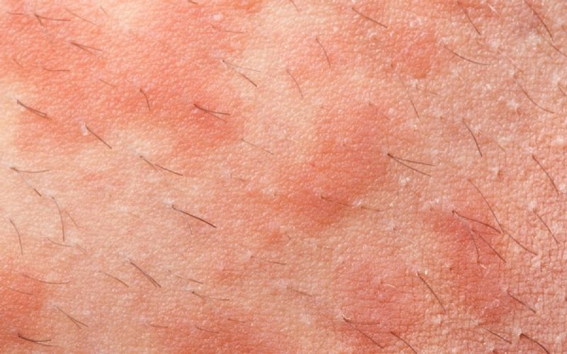 Έκζεμα και οξύς κνησμός: Πότε τα αντιισταμινικά δεν βοηθούν;