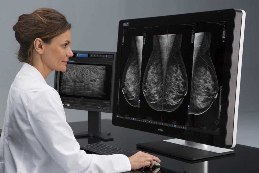 To 50% των Ελληνίδων έχουν πυκνούς ινοκυστικούς μαστούς που απαιτούν συχνότερους ελέγχους