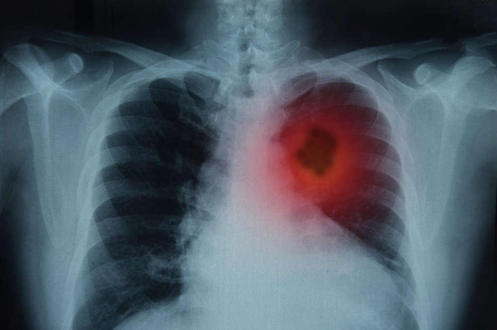 Η ένταξη ασθενών με καρκίνο πνεύμονα σε κλινικές μελέτες μειώθηκε σημαντικά κατά τη διάρκεια της πανδημίας COVID-19