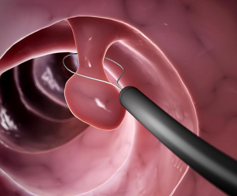 Κολονοσκόπηση για την πρόληψη του καρκίνου του παχέος εντέρου